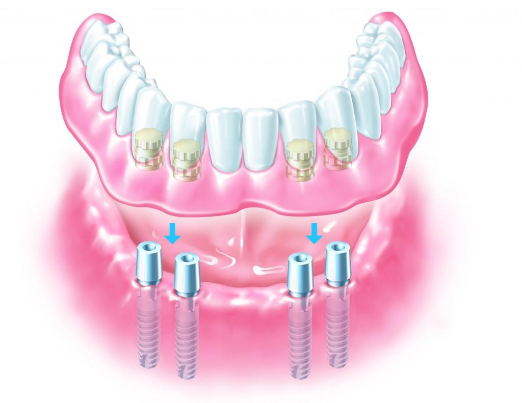 denture-implant