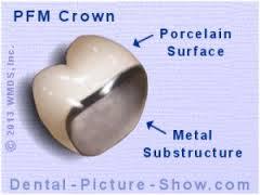 porcelain fused to metal crown