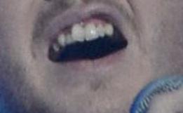 James Arthur X factor teeth