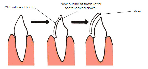 Fitting of dental veneers
